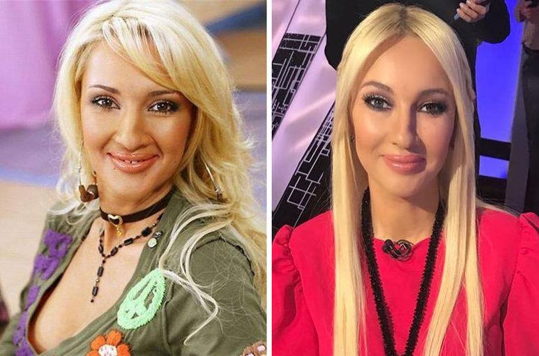 Лера Кудрявцева до и после пластики фото