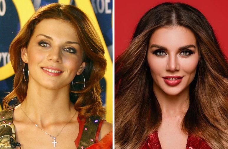 Анна Седакова до и после пластики фото