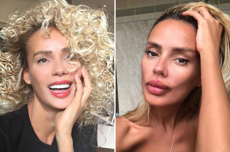 Кристина Сысоева до и после пластики фото